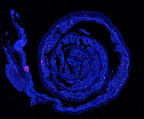 Identifican-dos-proteinas-implicadas-en-el-cancer-colorrectal_image_380