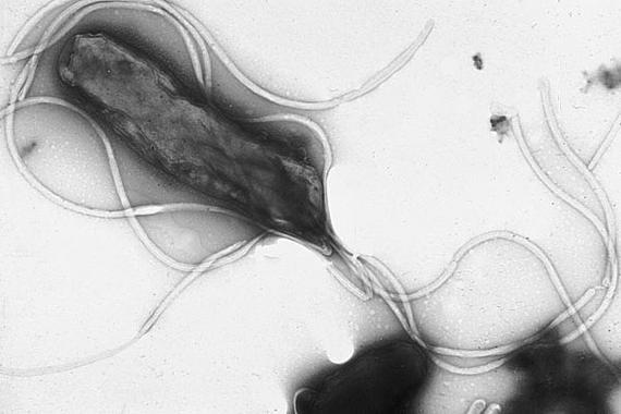 La bacteria Helicobacter pylori es la principal causa de cáncer de estómago