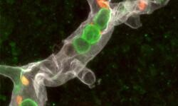Los-globulos-blancos-escanean-la-sangre-para-provocar-ictus_image_380 (1)