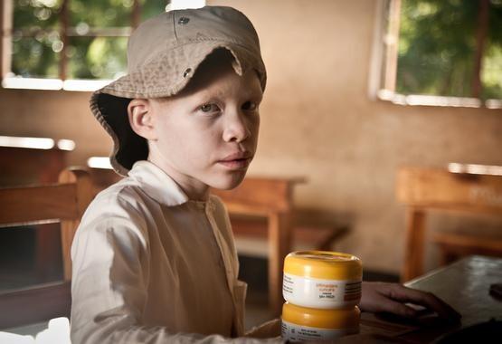 Una-espanola-en-Tanzania-produce-cremas-fotoprotectoras-para-albinos_image_380