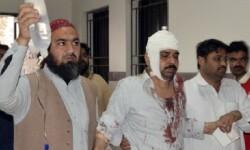 Hombre herido en la explosión en Pakistán.  (Foto-AP).