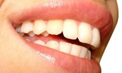 blanqueo-dientes