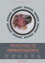 02-principios-de-dermatoscopia