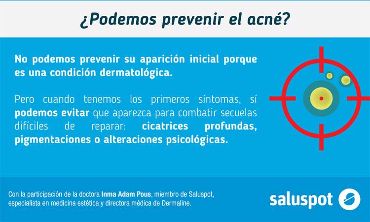 mitos-del-acne-02