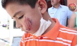 Pitbull ataca a un niño de 8 años en Saltillo