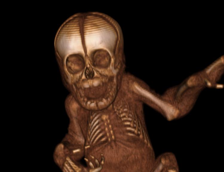 Reconstrucción tridimensional de uno de los orangutanes recién nacidos estudiados en el Laboratorio de Osteología