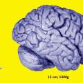 Imagen a escala del cerebro de una rana y de un cerebro humano. /Jovana Drinjakovic