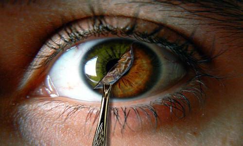 Cirugía-ocular-lente-de-contacto-implantable