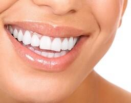 Una imagen de una sonrisa blanca siempre produce mejor impresión.