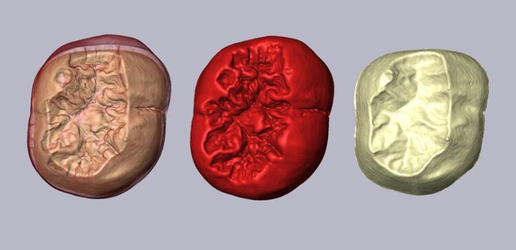 Las-muelas-de-Atapuerca-confirman-las-semejanzas-entre-especies-de-Homo_image_380
