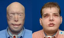 Llevan a cabo en Nueva York el trasplante de cara más complejo hasta la fecha   Vídeos   Multimedia   SINC