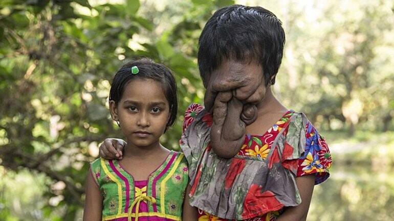 joven sin cara india (1)