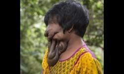 joven sin cara india (5)