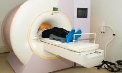scanner-cerebral-2