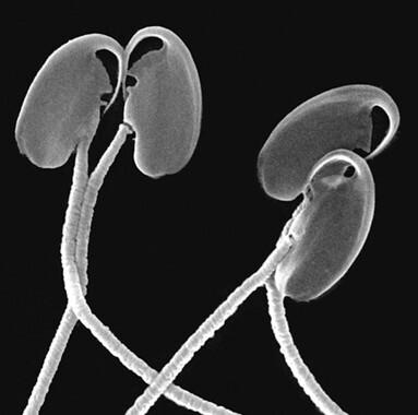 Trenes-de-espermatozoides-para-llegar-mas-rapido-al-ovulo_image_380