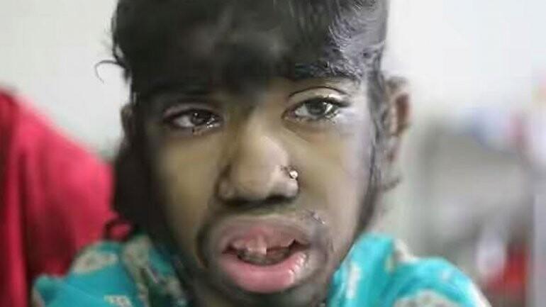 El drama de Bithi Akhtar, la niña lobo de Bangladesh (1)