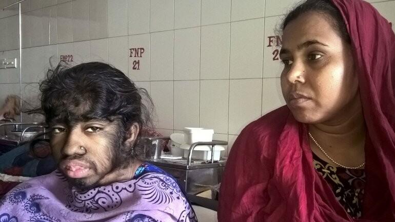 El drama de Bithi Akhtar, la niña lobo de Bangladesh (2)