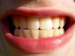 La oclusión dental es el contacto que se establece entre los dientes superiores e inferiores al cerrar la boca./ Eltpics