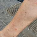mosquitos-en-mislata-2