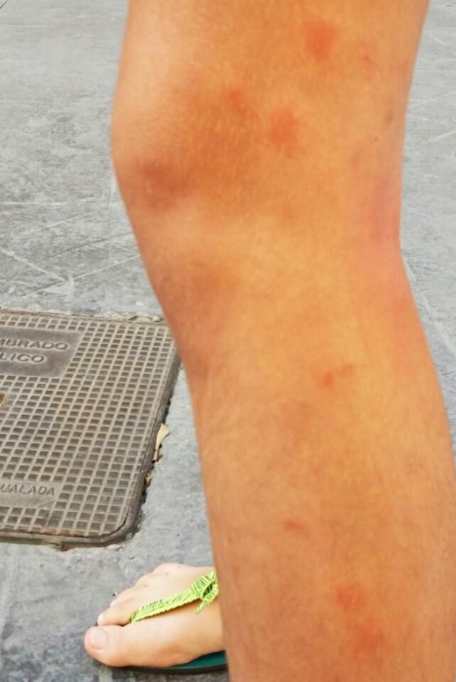 mosquitos-en-mislata