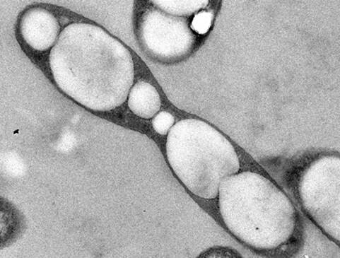 Imagen de microscopio de la bacteria Azoarcus sp. CIB