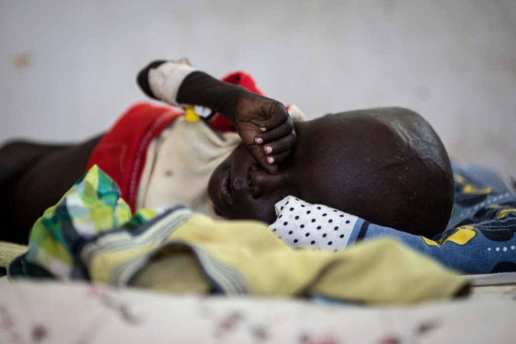 A sick child lies in a bed in a UNICEF supported hospital in Juba, South Sudan, January 24, 2017.  In 2017 in South Sudan, ongoing insecurity, combined with an economic crisis that has pushed inflation above 800 percent, has created widespread food insecurity with malnutrition among children having reached emergency levels in most parts of the country. In 2016, UNICEF and partners admitted 184,000 children for treatment of severe malnutrition. That is 50 percent higher than the number treated in 2015 and an increase of 135 percent over 2014. In February 2017, war and a collapsing economy have left some 100,000 people facing starvation in parts of South Sudan where famine was declared 20 February, three UN agencies warned. A further 1 million people are classified as being on the brink of famine. The Food and Agriculture Organization of the United Nations (FAO), the United Nations Children's Fund (UNICEF) and the World Food Programme (WFP) also warned that urgent action is needed to prevent more people from dying of hunger. If sustained and adequate assistance is delivered urgently, the hunger situation can be improved in the coming months and further suffering mitigated.  The total number of food insecure people is expected to rise to 5.5 million at the height of the lean season in July if nothing is done to curb the severity and spread of the food crisis. According to the Integrated Food Security Phase Classification (IPC) update released 20 February by the government, the three agencies and other humanitarian partners, 4.9 million people – more than 40 percent of South Sudan's population – are in need of urgent food, agriculture and nutrition assistance. Unimpeded humanitarian access to everyone facing famine, or at risk of famine, is urgently needed to reverse the escalating catastrophe, the UN agencies urged. Further spread of famine can only be prevented if humanitarian assistance is scaled up and reaches the most vulnerable. Famine is currently a