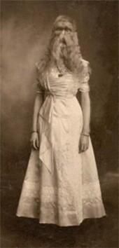 Alice-Doherty-nacida-en-Minneapolis-en-1887-sufría-de-una-rara-condición-que-provocaba-que-su-cara-estuviera-cubierta-de-pelo.