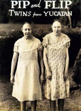 Jenny-Lee-y-Elvira-Snow-de-nombres-artísticos-Pip-y-Flip-sufrían-microcefalia.