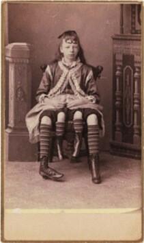 Josephene-Myrtle-Corbin-la-mujer-de-las-cuatro-piernas-nació-en-el-estado-de-Tennessee-en-1868.-Un-tipo-de-deformación-causó-que-de-cintura-para-abajo-tuviera-dos-cuerpos-completos