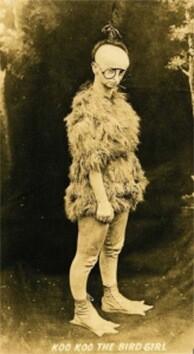 Minnie-Woolsey-la-mujer-ave-nació-en-1880.-Padecía-una-rara-enfermedad-de-los-huesos