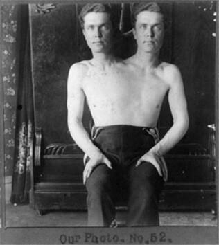 Un-hombre-con-dos-cabezas.-La-fotografía-fue-tomada-en-1901