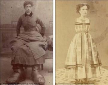 Una-artista-de-circo-sin-manos-y-Fannie-Mills-nacida-en-1860-en-Inglaterra.-Mills-sufría-la-enfermedad-de-Milroy-que-causó-que-tuviera-piernas-y-pies-gigantes.