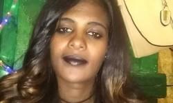 mujer-quemada-acido-etiopia-4