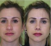 rinoplastia operacion nariz valencia dr mira