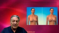 Elevar el pecho: una compleja intervención