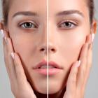 Mesoterapia facial, cuello, escote y manos: