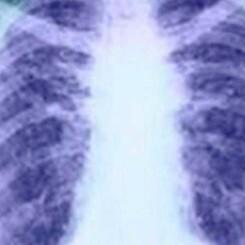 El cáncer de pulmón en cifras
