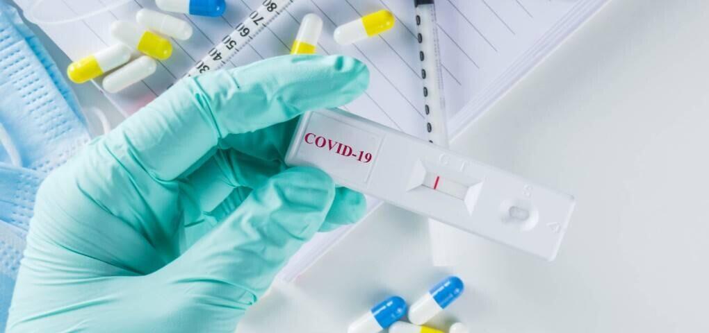 Asi-funcionan-los-test-rapidos-para-la-COVID-19