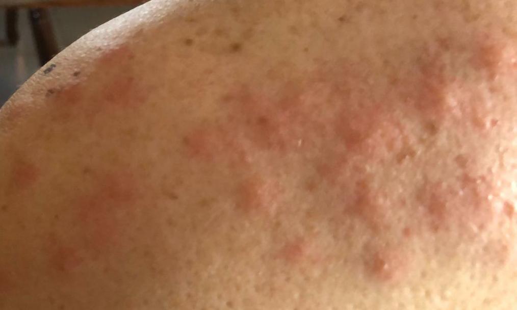 Vecino de Burriana picadura mosquitos